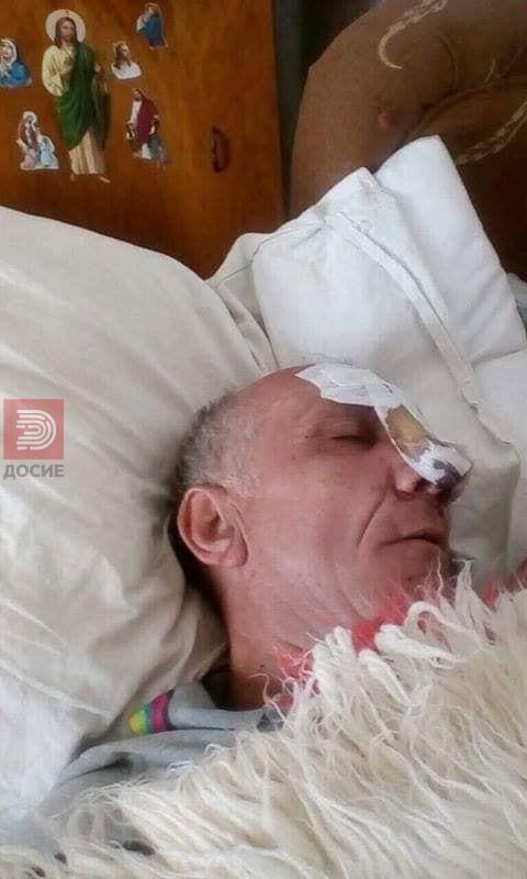 Самохран татко 4 месеци лежи претепан во болница , телото му се распаѓа