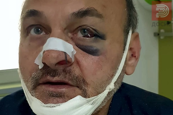 Скопски бизнисмен крвнички претепал газда на менувачница и кафуле