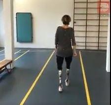 ВИДЕО: По ампутирација на двете нозе холанџанка прооде со посебни помагала!
