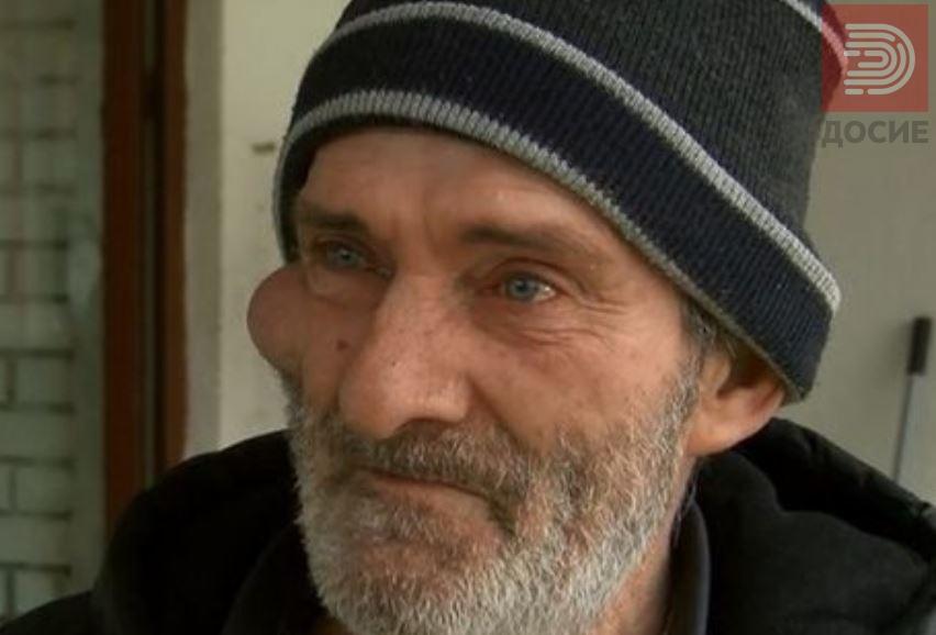 Отстранет израстокот на лицето на чичко Ванчо кој немаше пари да си плати операција, а не е ни здраствено осигуран