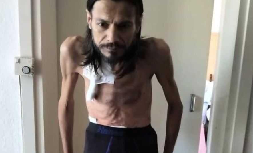 Битолчанец во критична здраствена состојба, потребна итна помош