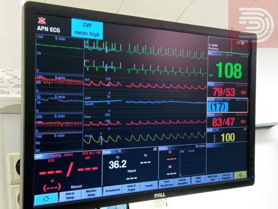 Филипче: Пациентката врз која беше извршена трансплантацијата на срце најпрво се исплаши и ја одби операцијата